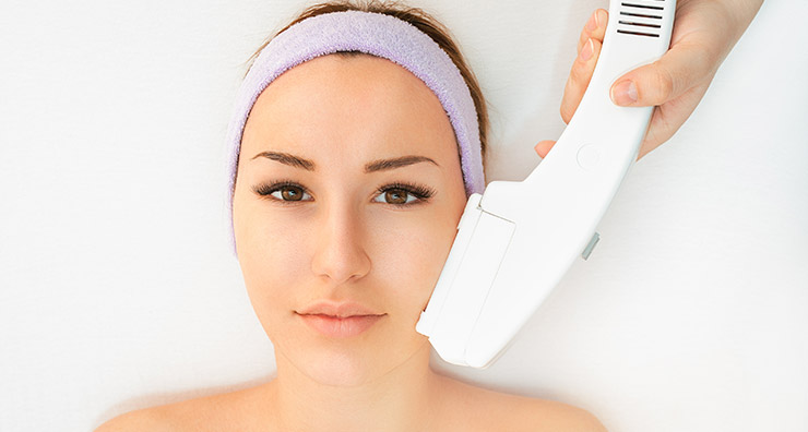 Fraxel Laser Treatment vs. IPL