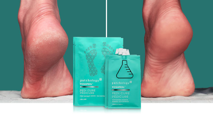 How To Get Smooth Feet: Natasha's Experience with patchology PoshPeel Pedicure