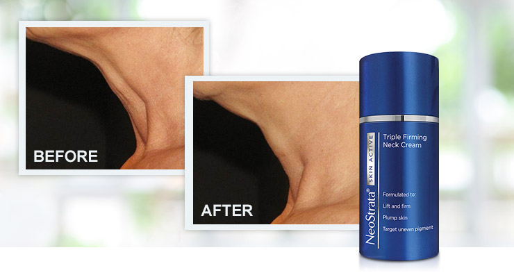 Transformation Tuesday: NeoStrata Skin Active Triple Firming Neck Cream