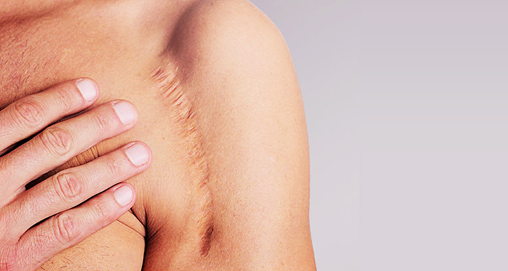 Scar Wars: How to Banish Scars