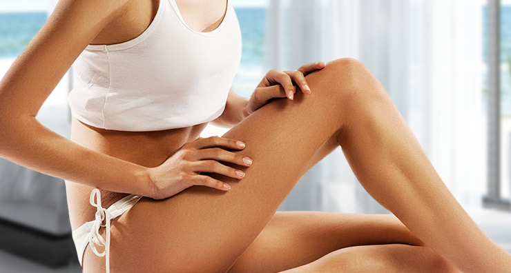 All About Spider Veins