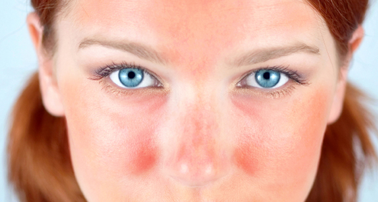 Learn About Rosacea Products and Symptoms During Rosacea Awareness Month