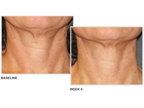 NeoStrata Skin Active Triple Firming Neck Cream: neck firming cream results.