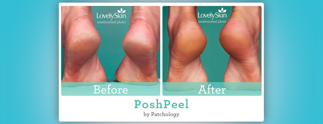 patchology PoshPeel Pedicure | LovelySkin
